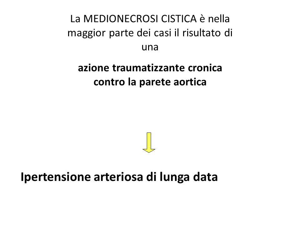 La MEDIONECROSI CISTICA è nella maggior parte dei casi il risultato di una azione traumatizzante cronica contro la parete aortica Ipertensione arterio