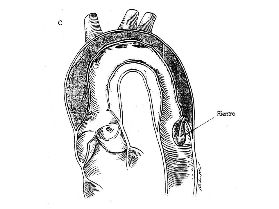 CLASSIFICAZIONE L' elemento essenziale di un sistema di classificazione della dissecazione aortica è il coinvolgimento dell'aorta ascendente, indipendentemente dalla posizione della lacerazione primaria intimale e dall'estensione distale del processo di dissecazione.