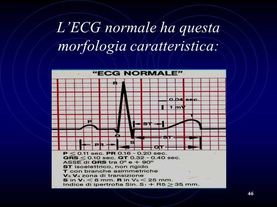 46 L'ECG normale ha questa morfologia caratteristica: