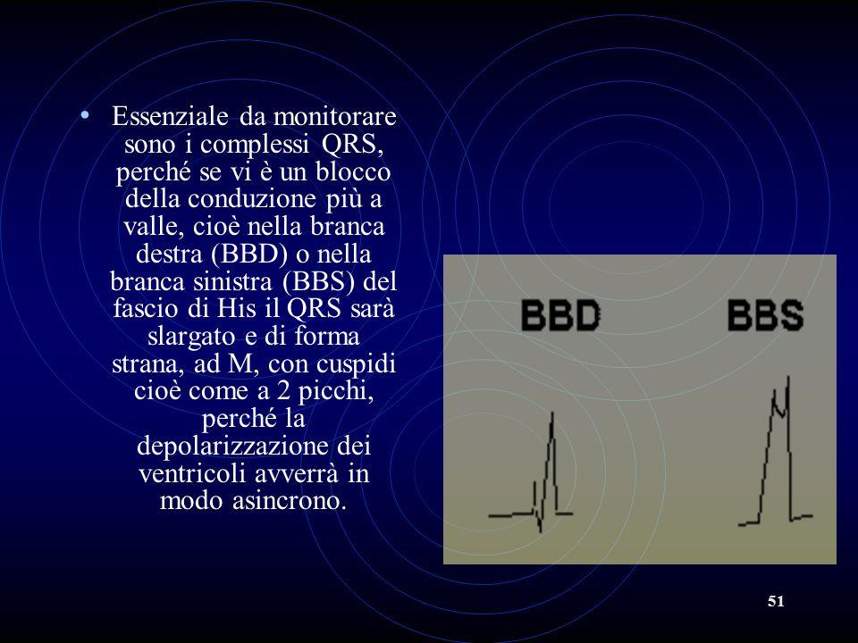 51 Essenziale da monitorare sono i complessi QRS, perché se vi è un blocco della conduzione più a valle, cioè nella branca destra (BBD) o nella branca