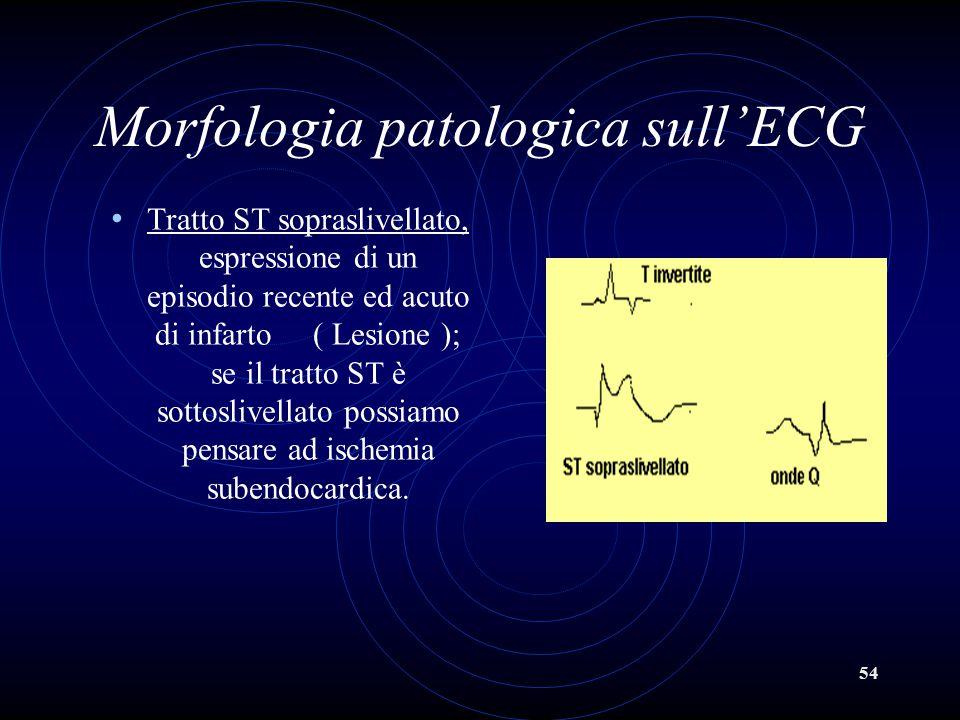 54 Morfologia patologica sull'ECG Tratto ST sopraslivellato, espressione di un episodio recente ed acuto di infarto ( Lesione ); se il tratto ST è sot