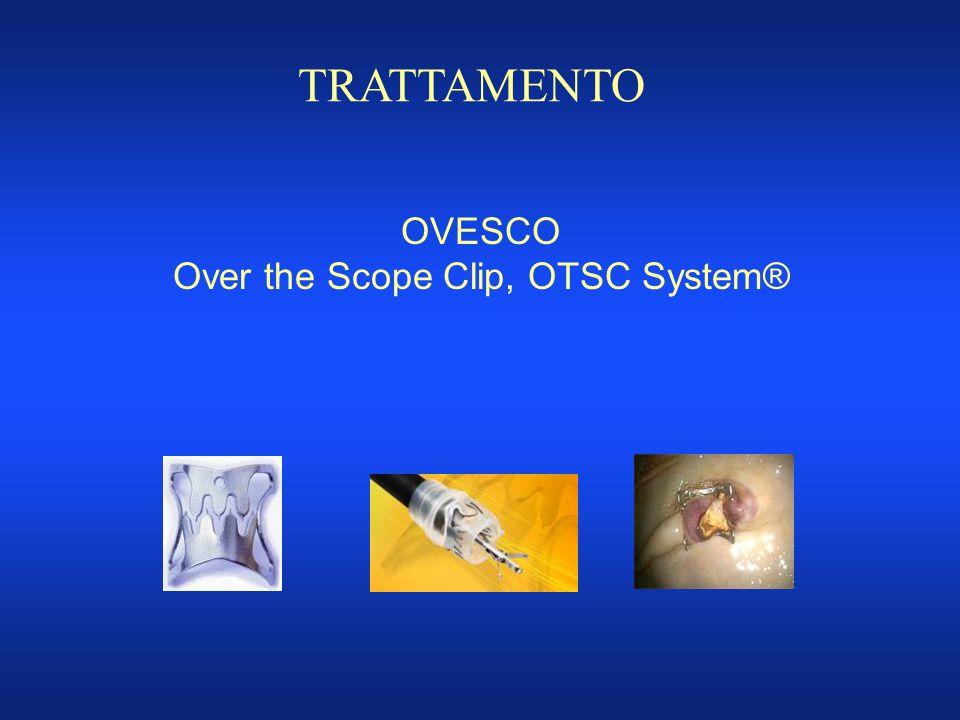 TRATTAMENTO OVESCO Over the Scope Clip, OTSC System®