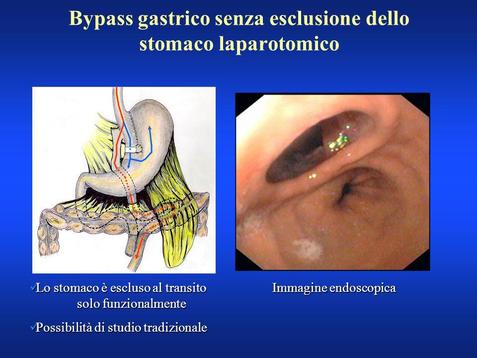 Bypass gastrico senza esclusione dello stomaco laparotomico Lo stomaco è escluso al transito solo funzionalmente Lo stomaco è escluso al transito solo