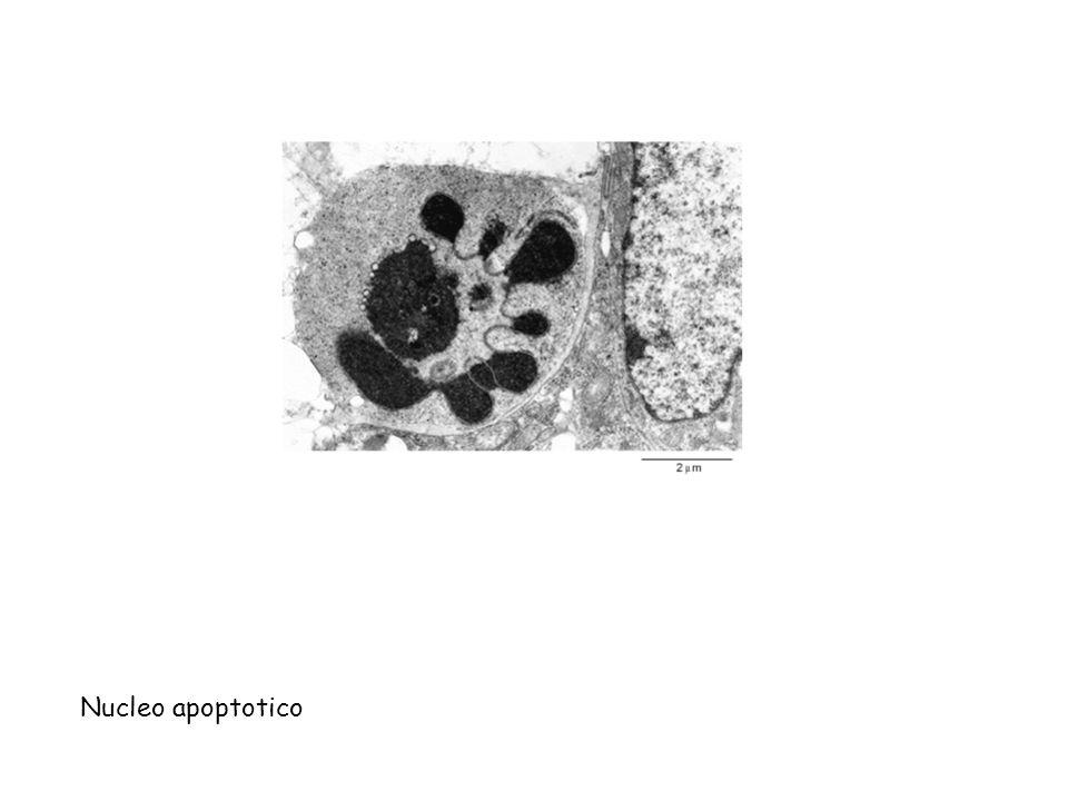 Nucleo apoptotico