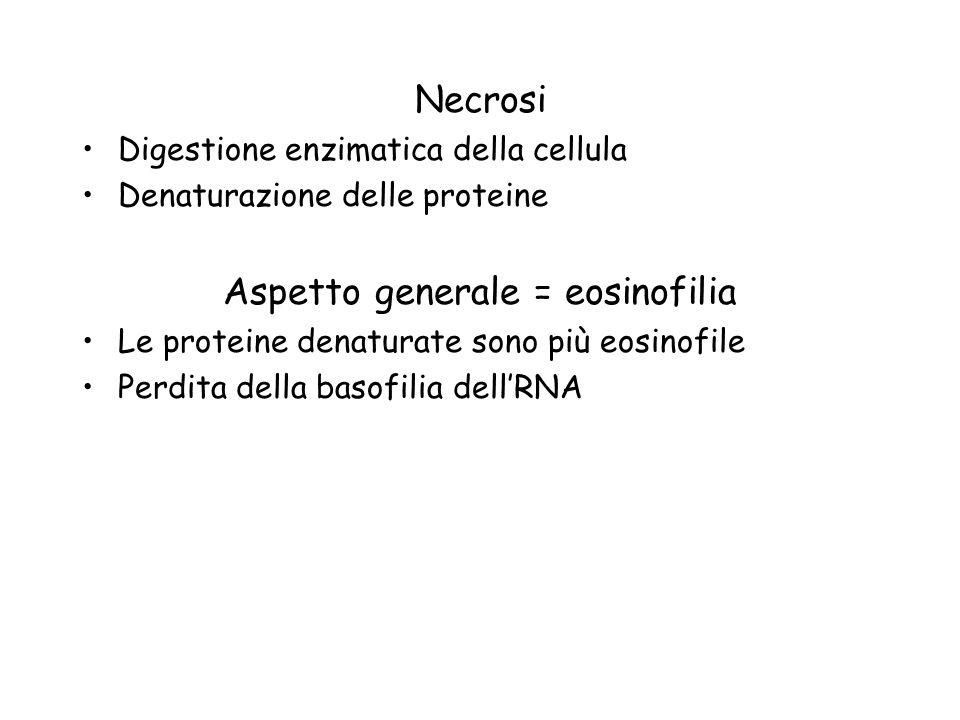 Necrosi Digestione enzimatica della cellula Denaturazione delle proteine Aspetto generale = eosinofilia Le proteine denaturate sono più eosinofile Per