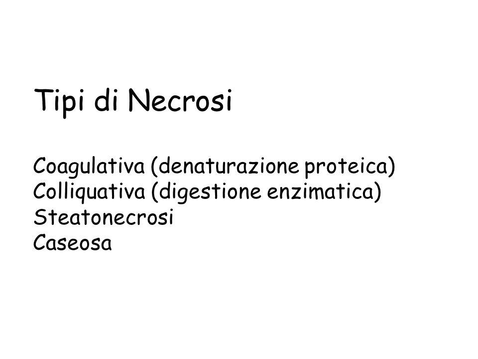 Granuli di emosiderina