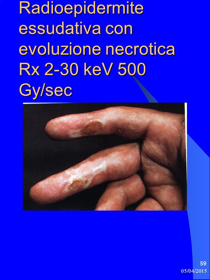 05/04/2015 59 Radioepidermite essudativa con evoluzione necrotica Rx 2-30 keV 500 Gy/sec