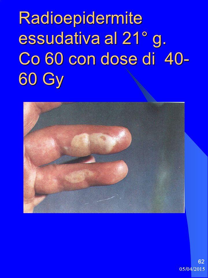 05/04/2015 62 Radioepidermite essudativa al 21° g. Co 60 con dose di 40- 60 Gy