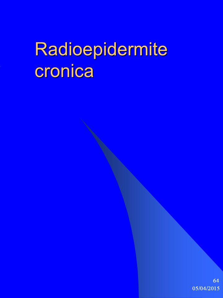 05/04/2015 64 Radioepidermite cronica