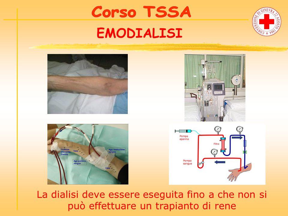 EMODIALISI La dialisi deve essere eseguita fino a che non si può effettuare un trapianto di rene