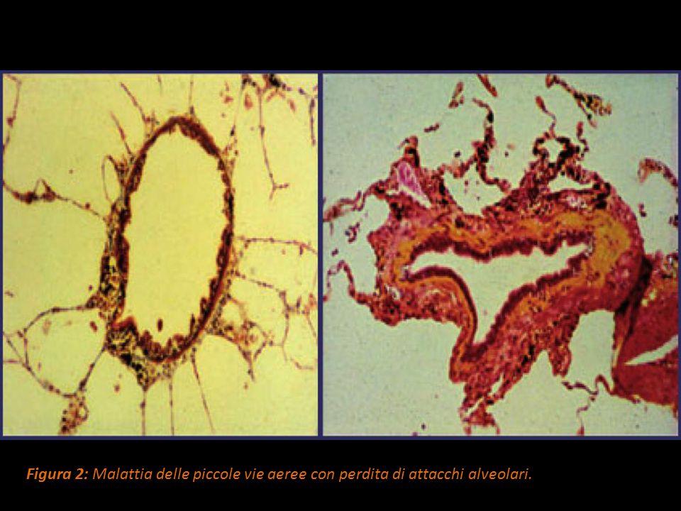 Figura 2: Malattia delle piccole vie aeree con perdita di attacchi alveolari.