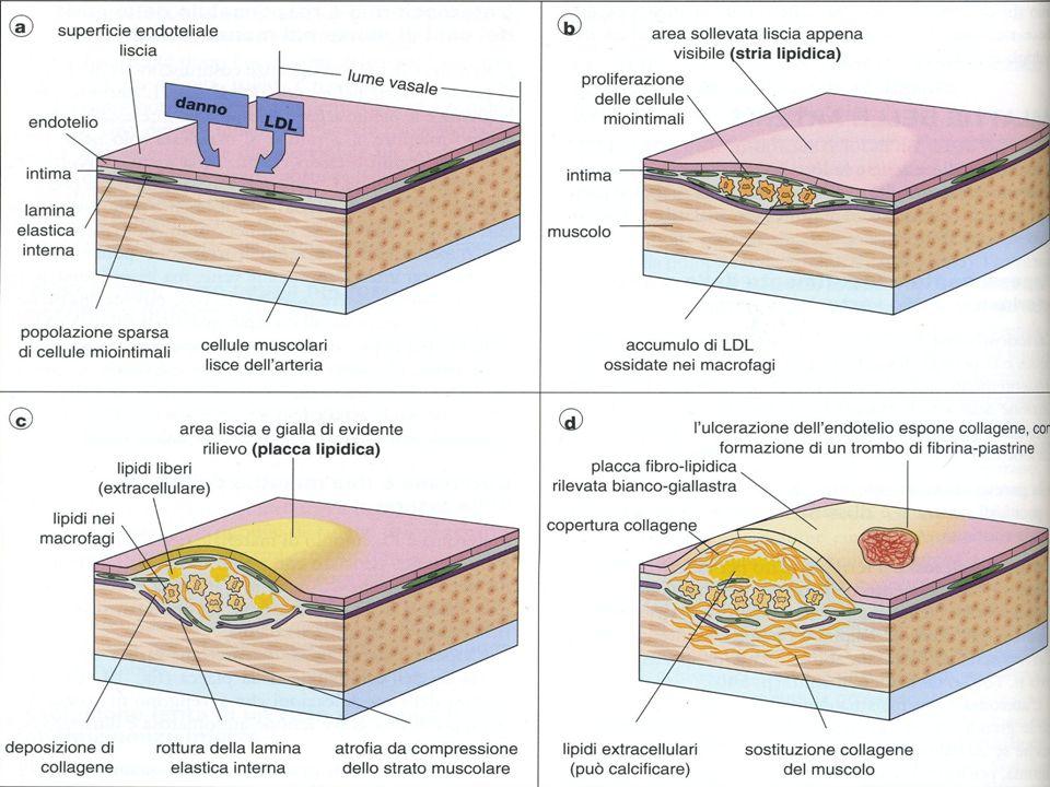 Aterosclerosi coronarica 3 Caratteristiche della placca Placca stabile: Deposito lipidico scarso; rivestimento fibroso spesso; stenosi di grado elevato; mai nelle biforcazioni Placca stabile: Deposito lipidico scarso; rivestimento fibroso spesso; stenosi di grado elevato; mai nelle biforcazioni Placca vulnerabile: Deposito lipidico ampio; più recente, meno stenosante; Localizzata alla biforcazione; Infiltrato infiammatorio Placca vulnerabile: Deposito lipidico ampio; più recente, meno stenosante; Localizzata alla biforcazione; Infiltrato infiammatorio
