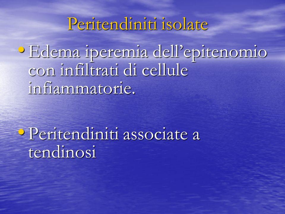 Edema iperemia dell'epitenomio con infiltrati di cellule infiammatorie. Edema iperemia dell'epitenomio con infiltrati di cellule infiammatorie. Perite