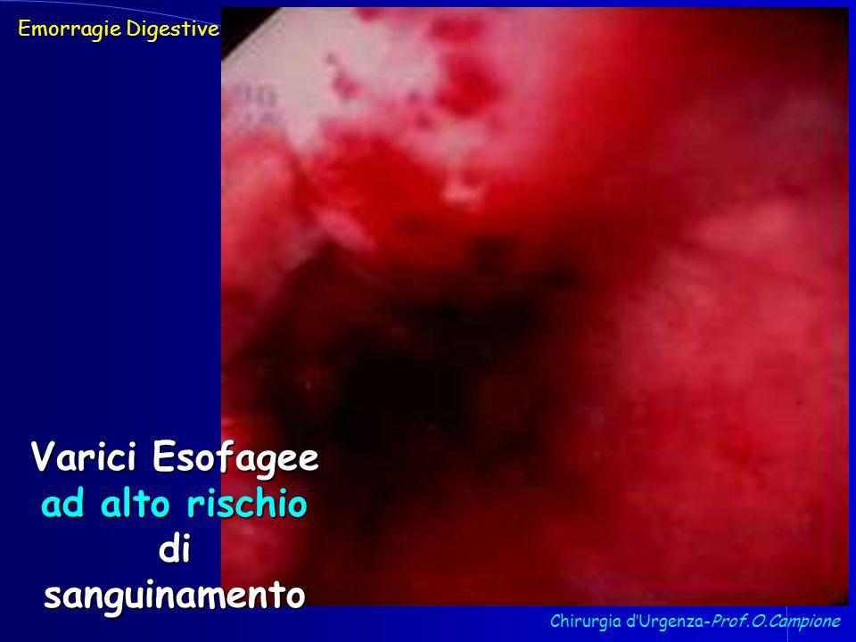 Chirurgia d'Urgenza-Prof.O.Campione Emorragie Digestive Varici Esofagee ad alto rischio di sanguinamento