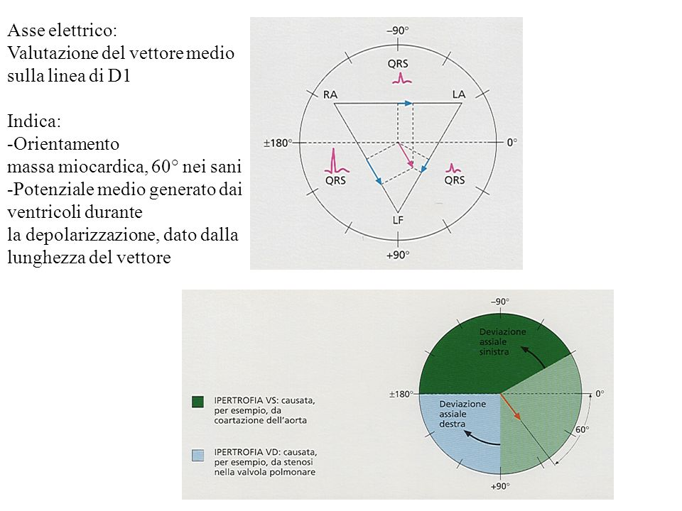 Asse elettrico: Valutazione del vettore medio sulla linea di D1 Indica: -Orientamento massa miocardica, 60° nei sani -Potenziale medio generato dai ve