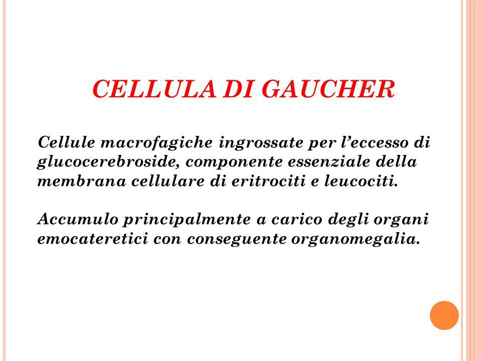 CELLULA DI GAUCHER Cellule macrofagiche ingrossate per l'eccesso di glucocerebroside, componente essenziale della membrana cellulare di eritrociti e l