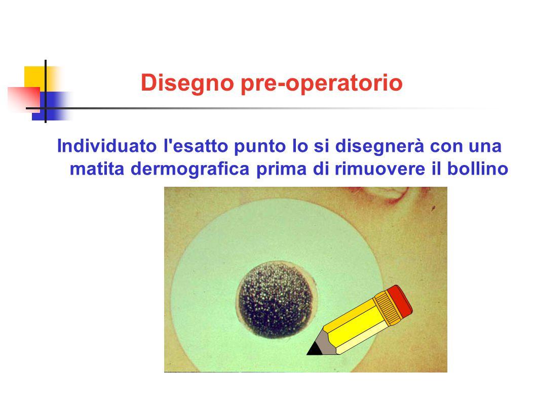 Disegno pre-operatorio Individuato l esatto punto lo si disegnerà con una matita dermografica prima di rimuovere il bollino