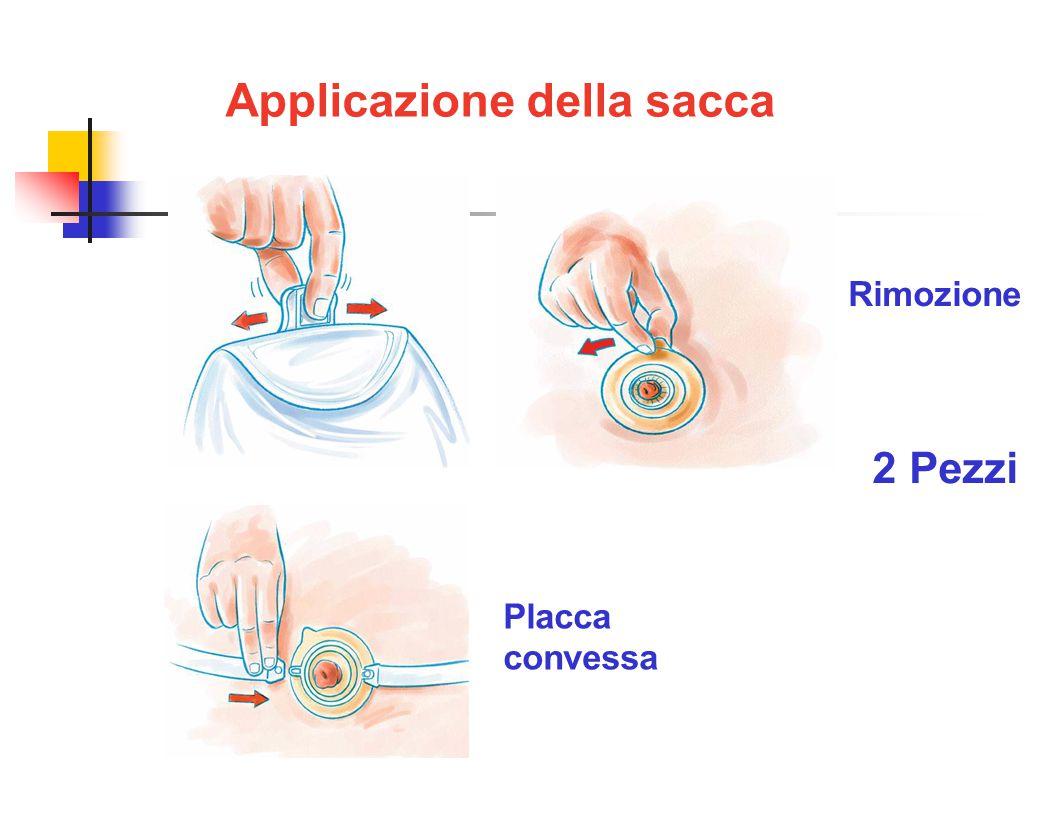 Applicazione della sacca 2 Pezzi Rimozione Placca convessa