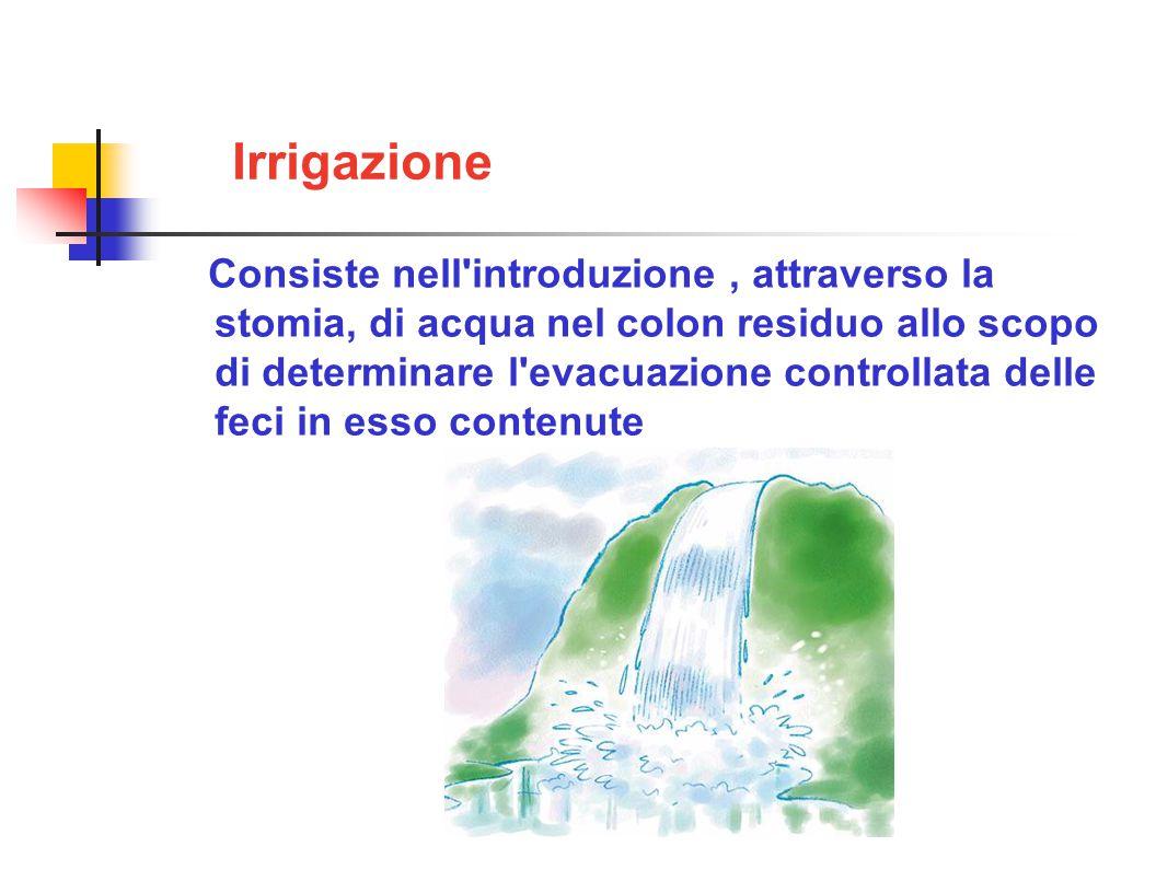 Irrigazione Consiste nell introduzione, attraverso la stomia, di acqua nel colon residuo allo scopo di determinare l evacuazione controllata delle feci in esso contenute