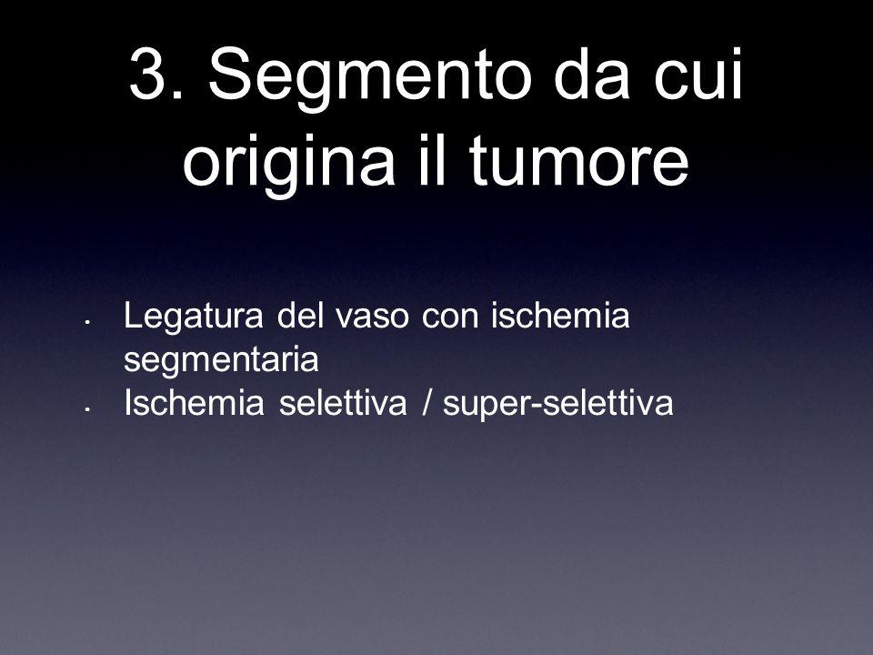3. Segmento da cui origina il tumore Legatura del vaso con ischemia segmentaria Ischemia selettiva / super-selettiva