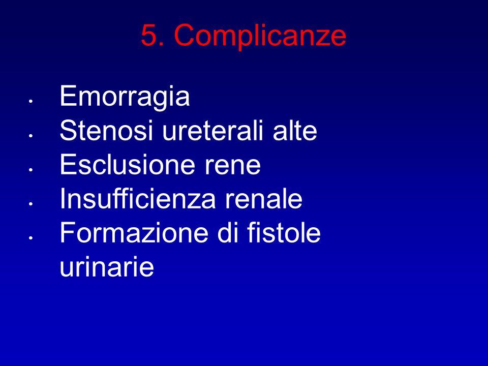 5. Complicanze Emorragia Stenosi ureterali alte Esclusione rene Insufficienza renale Formazione di fistole urinarie