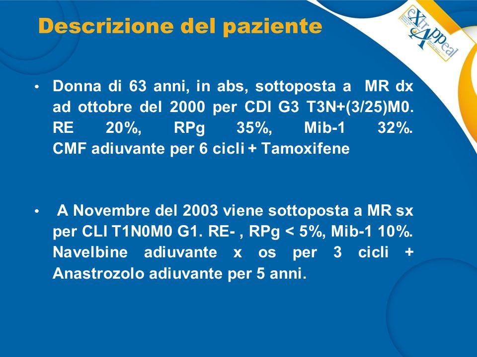 Descrizione del paziente Donna di 63 anni, in abs, sottoposta a MR dx ad ottobre del 2000 per CDI G3 T3N+(3/25)M0. RE 20%, RPg 35%, Mib-1 32%. CMF adi
