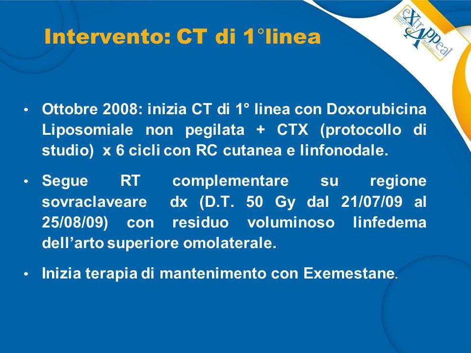 Intervento: CT di 1°linea Ottobre 2008: inizia CT di 1° linea con Doxorubicina Liposomiale non pegilata + CTX (protocollo di studio) x 6 cicli con RC