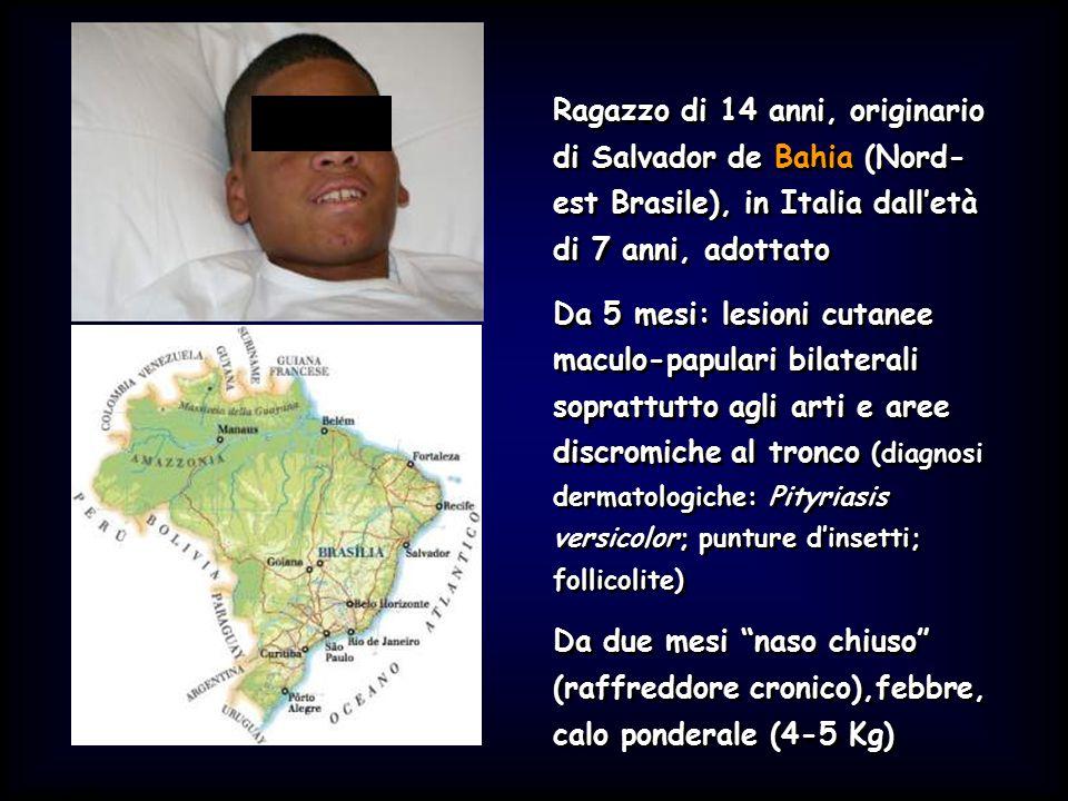 Simit 11/2008 Ragazzo di 14 anni, originario di Salvador de Bahia (Nord- est Brasile), in Italia dall'età di 7 anni, adottato Da 5 mesi: lesioni cutanee maculo-papulari bilaterali soprattutto agli arti e aree discromiche al tronco (diagnosi dermatologiche: Pityriasis versicolor; punture d'insetti; follicolite) Da due mesi naso chiuso (raffreddore cronico),febbre, calo ponderale (4-5 Kg) Ragazzo di 14 anni, originario di Salvador de Bahia (Nord- est Brasile), in Italia dall'età di 7 anni, adottato Da 5 mesi: lesioni cutanee maculo-papulari bilaterali soprattutto agli arti e aree discromiche al tronco (diagnosi dermatologiche: Pityriasis versicolor; punture d'insetti; follicolite) Da due mesi naso chiuso (raffreddore cronico),febbre, calo ponderale (4-5 Kg)