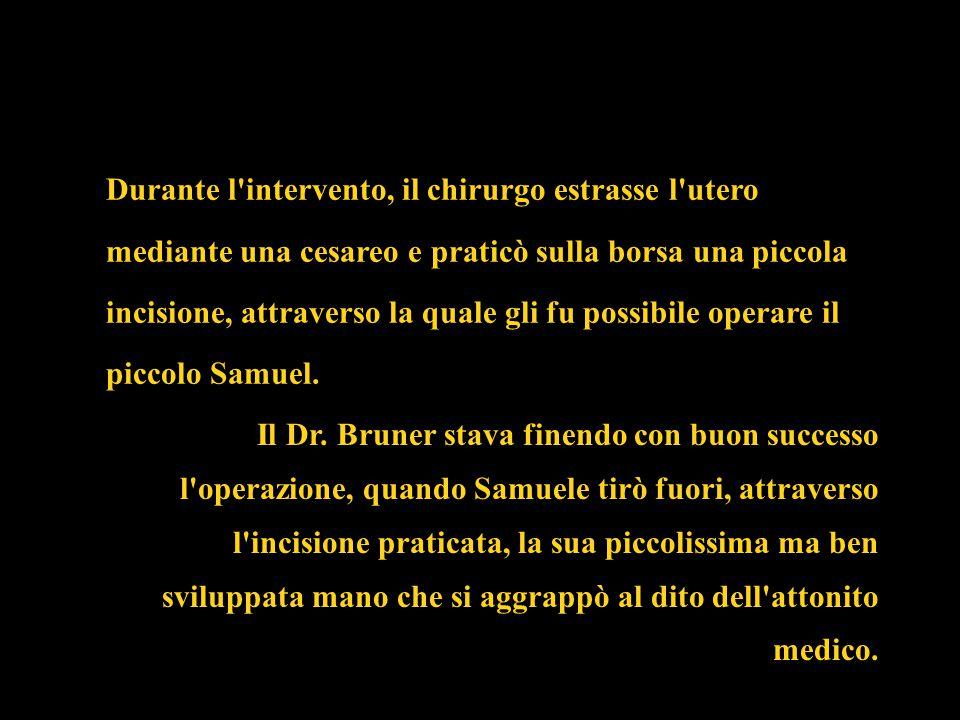 Il Dr. Bruner stava finendo con buon successo l'operazione, quando Samuele tirò fuori, attraverso l'incisione praticata, la sua piccolissima ma ben sv