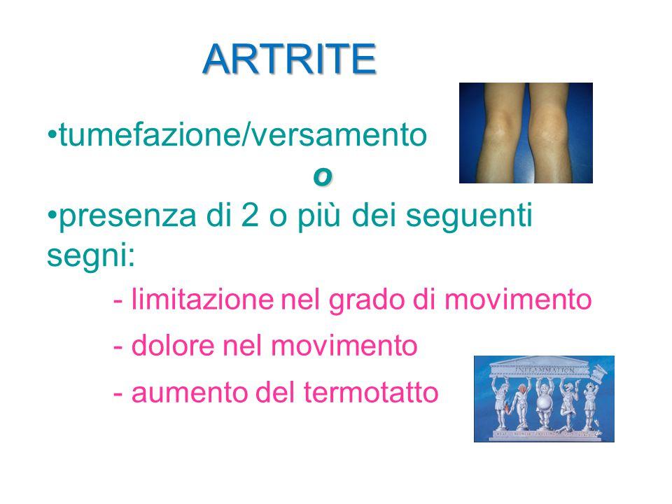ARTRITE tumefazione/versamentoo presenza di 2 o più dei seguenti segni: - limitazione nel grado di movimento - dolore nel movimento - aumento del term