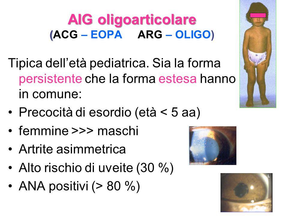 AIG oligoarticolare ( AIG oligoarticolare (ACG – EOPA ARG – OLIGO) Tipica dell'età pediatrica. Sia la forma persistente che la forma estesa hanno in c