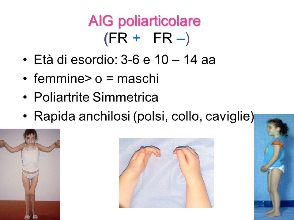 AIG poliarticolare ( AIG poliarticolare (FR + FR –) Età di esordio: 3-6 e 10 – 14 aa femmine> o = maschi Poliartrite Simmetrica Rapida anchilosi (pols