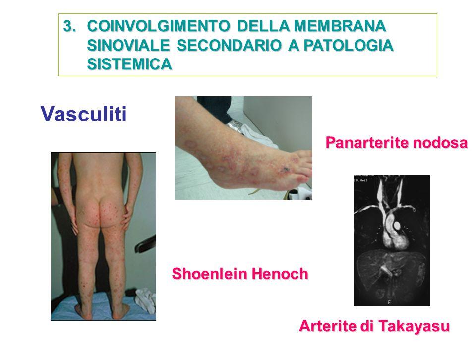 Vasculiti Shoenlein Henoch Panarterite nodosa Arterite di Takayasu
