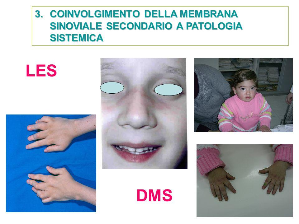 3.COINVOLGIMENTO DELLA MEMBRANA SINOVIALE SECONDARIO A PATOLOGIA SISTEMICA LES DMS