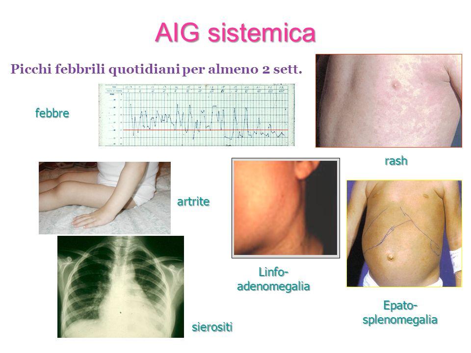 AIG sistemica febbre rash Epato-splenomegalia Linfo-adenomegalia sierositi artrite Picchi febbrili quotidiani per almeno 2 sett.