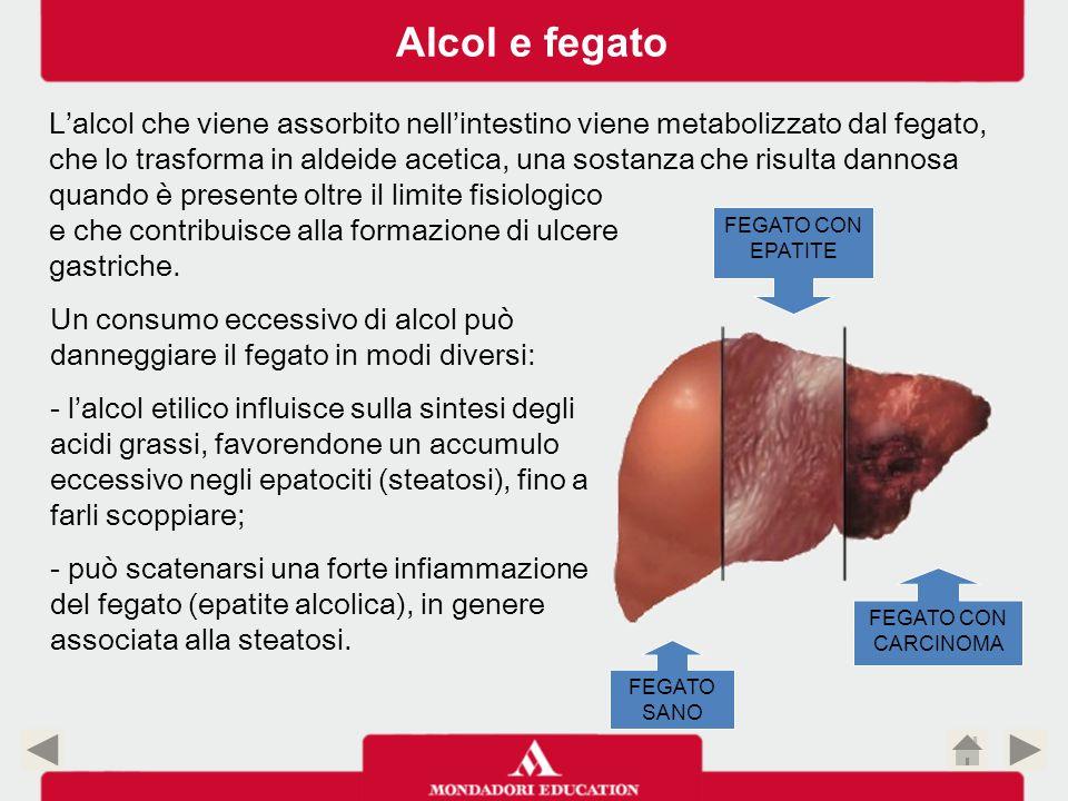 FEGATO SANO FEGATO CON EPATITE FEGATO CON CARCINOMA Alcol e fegato L'alcol che viene assorbito nell'intestino viene metabolizzato dal fegato, che lo t