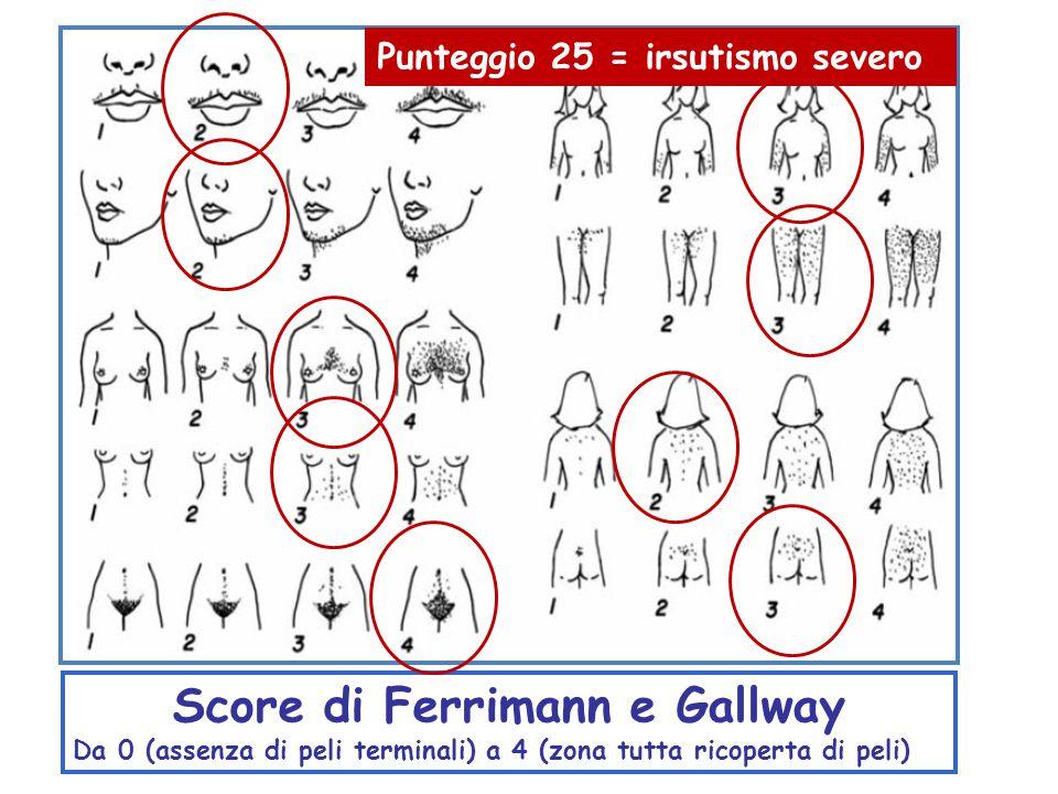 Score di Ferrimann e Gallway Da 0 (assenza di peli terminali) a 4 (zona tutta ricoperta di peli) Punteggio 25 = irsutismo severo