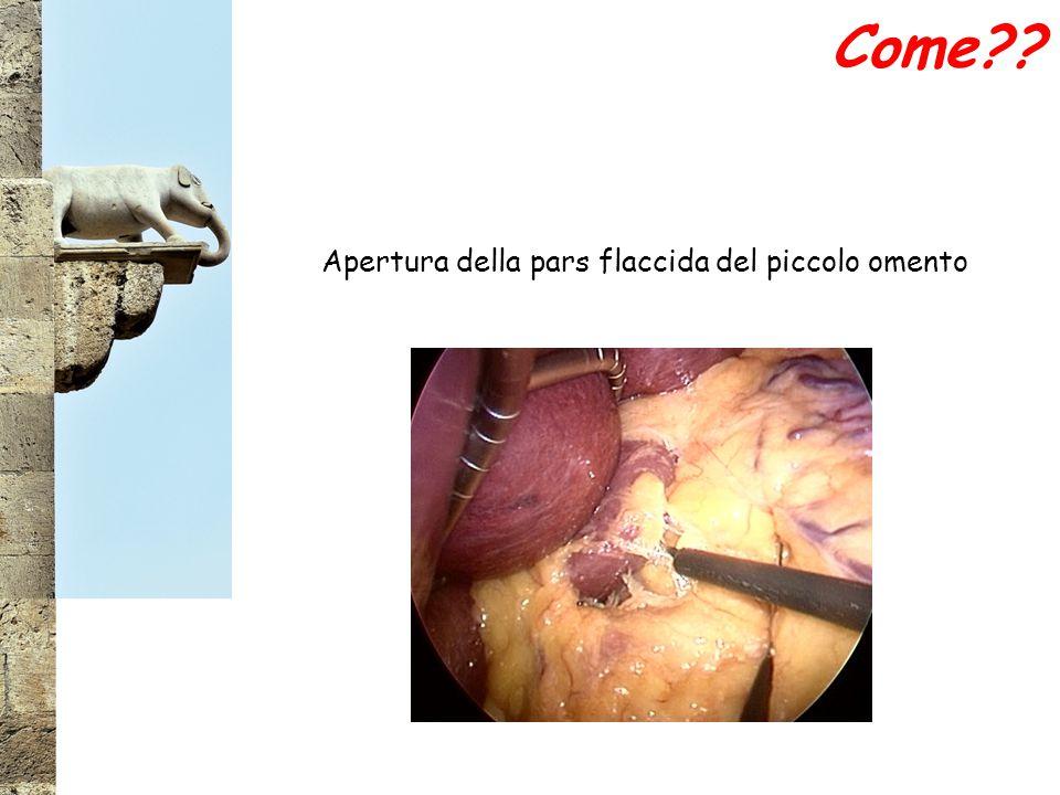 Apertura della pars flaccida del piccolo omento Come??
