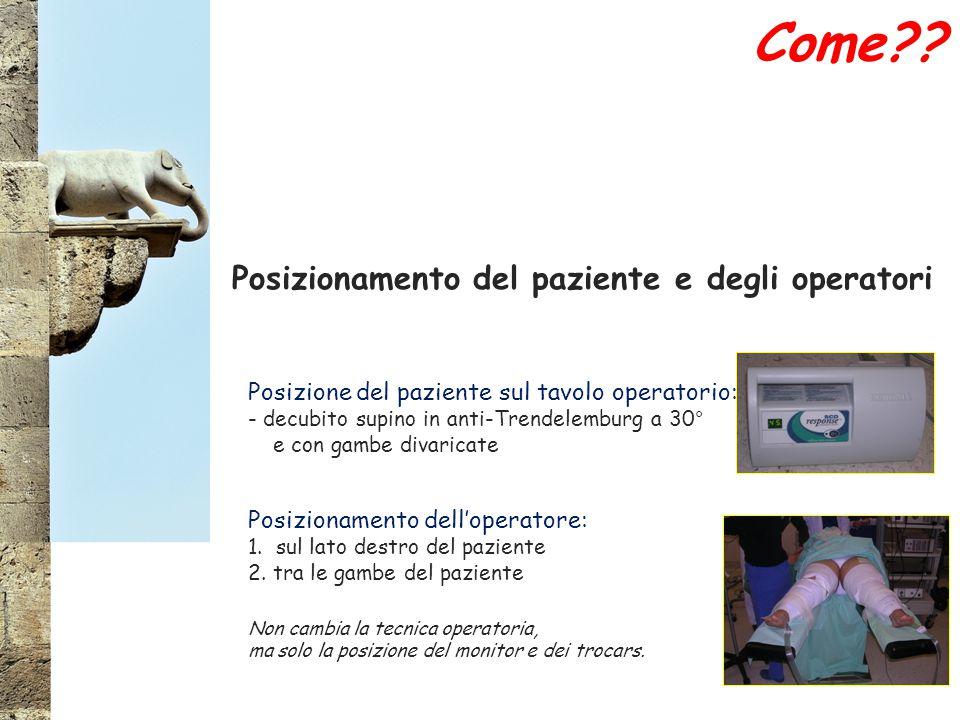 Posizionamento del paziente e degli operatori Posizione del paziente sul tavolo operatorio: - decubito supino in anti-Trendelemburg a 30° e con gambe divaricate Posizionamento dell'operatore: 1.