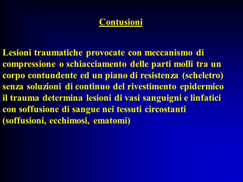 Lesioni traumatiche provocate con meccanismo di compressione o schiacciamento delle parti molli tra un corpo contundente ed un piano di resistenza (sc