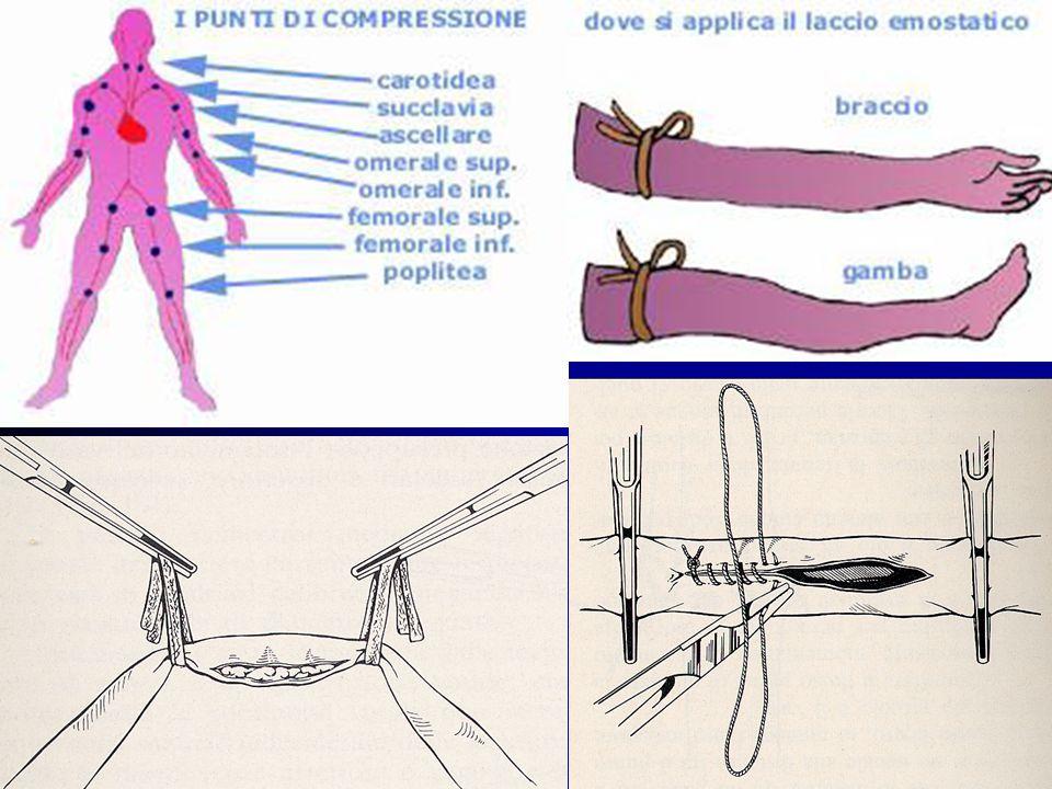 Guarigione per prima intenzione: I margini sono contrapposti, condizione che si verifica con la sutura Guarigione per seconda intenzione: La perdita di sostanza sarà colmata prima da tessuto di granulazione e poi da una massa cicatriziale