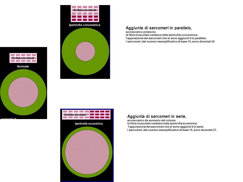 Aggiunta di sarcomeri in serie, sovraccarico da aumento del volume la fibra muscolare cardiaca nella ipertrofia eccentrica: l'apposizione dei sarcomer