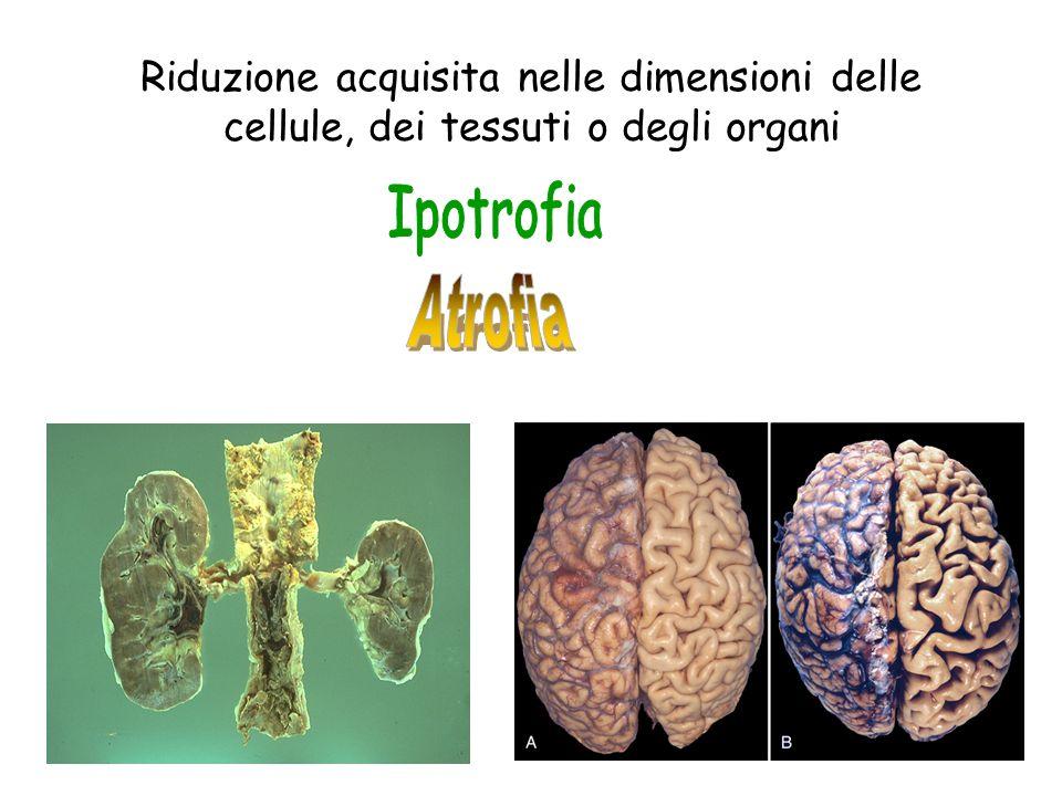 Riduzione acquisita nelle dimensioni delle cellule, dei tessuti o degli organi
