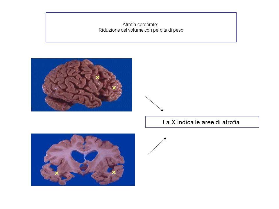 Atrofia cerebrale: Riduzione del volume con perdita di peso La X indica le aree di atrofia