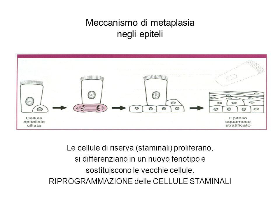Meccanismo di metaplasia negli epiteli Le cellule di riserva (staminali) proliferano, si differenziano in un nuovo fenotipo e sostituiscono le vecchie