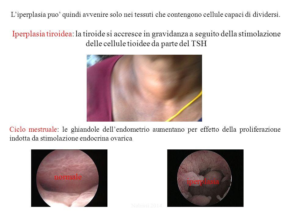 L'iperplasia puo' quindi avvenire solo nei tessuti che contengono cellule capaci di dividersi. Iperplasia tiroidea: la tiroide si accresce in gravidan