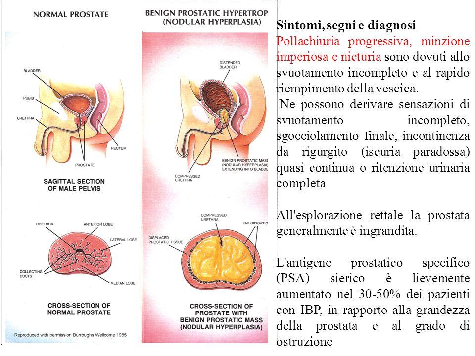 Sintomi, segni e diagnosi Pollachiuria progressiva, minzione imperiosa e nicturia sono dovuti allo svuotamento incompleto e al rapido riempimento della vescica.