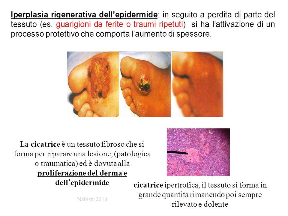 Iperplasia rigenerativa dell'epidermide: in seguito a perdita di parte del tessuto (es. guarigioni da ferite o traumi ripetuti) si ha l'attivazione di