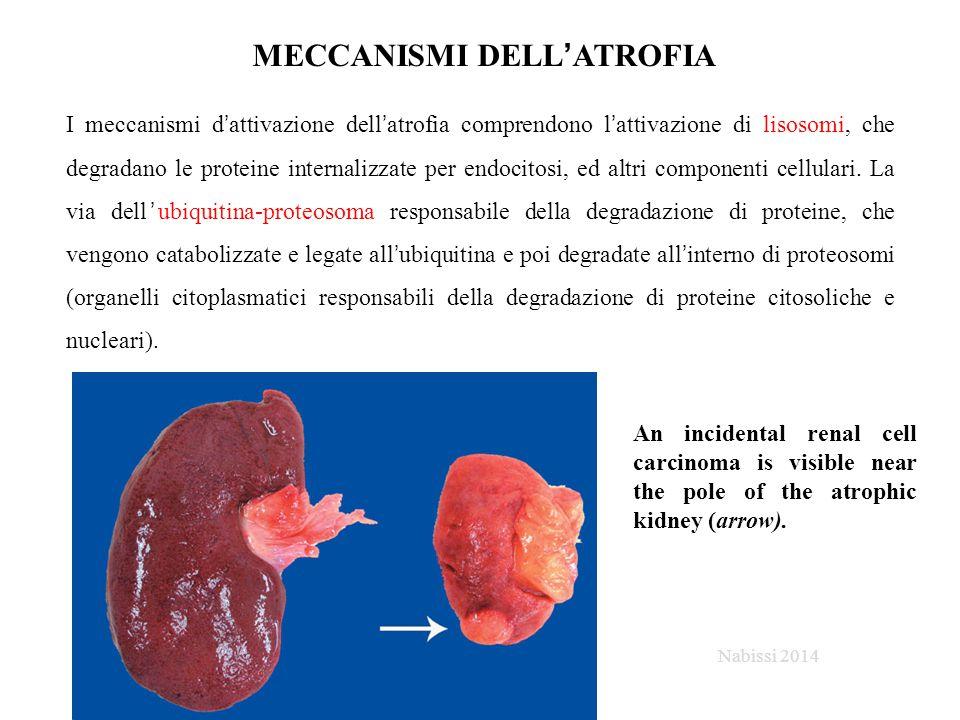 MECCANISMI DELL'ATROFIA I meccanismi d'attivazione dell'atrofia comprendono l'attivazione di lisosomi, che degradano le proteine internalizzate per endocitosi, ed altri componenti cellulari.