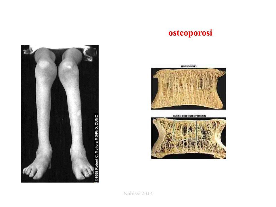 osteoporosi Nabissi 2014